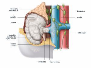3. att. III stadija: audzējs ir izplatījies nieru vēnā, ap nieri esošajos taukaudos (nieres tauku kapsula) un/vai dobajā vēnā.