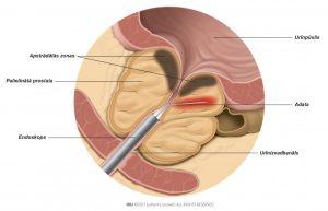 1. att. Adata uzkarsē prostatas audus, izmantojot radiofrekvenču elektromagnētisko enerģiju.