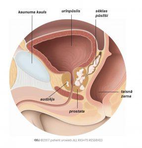 1. attēls. T3 stadijas prostatas audzējs, kas ir izplatījies sēklas pūslīšos.