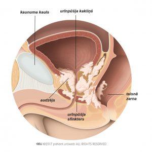2. attēls. T4 stadijas prostatas audzējs, kas ir izplatījies urīnpūšļa kakliņā, urīnpūšļa sfinkterī un taisnajā zarnā.
