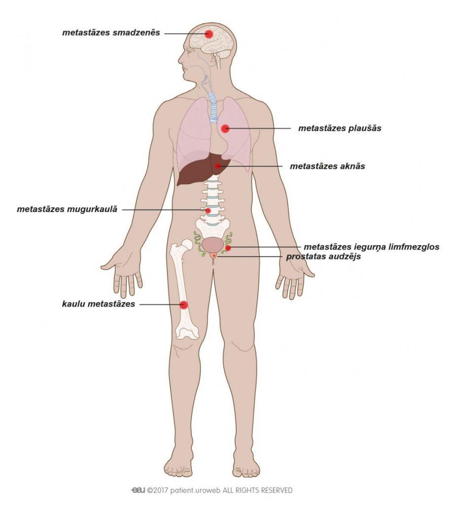 1. att.Metastātisks prostatas vēzis var izplatīties kaulos, mugurkaulā, plaušās vai smadzenēs.