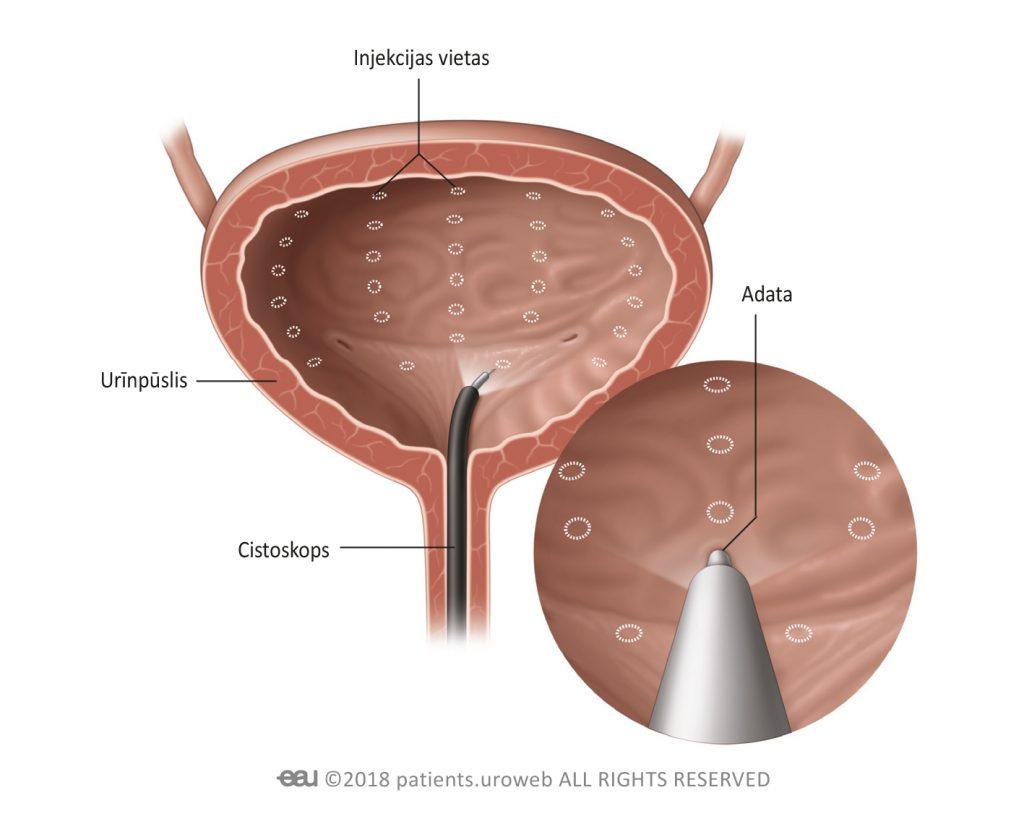 1. att. Botulīna toksīns tiek injicēts urīnpūšļa sieniņā.