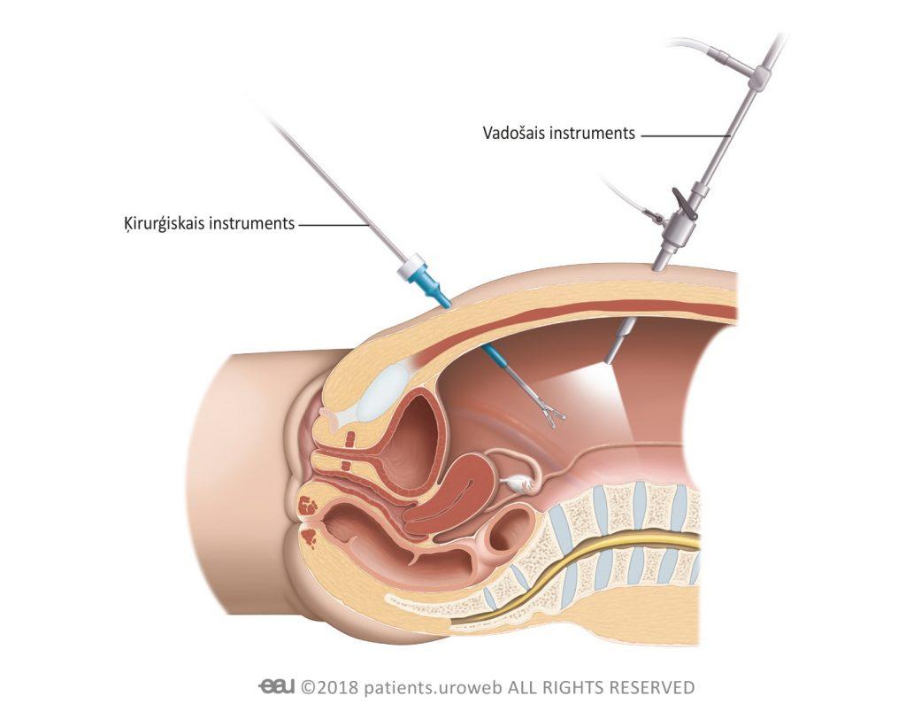 2. att. Laparoskopiskās procedūras gaitā ķirurgs caur nelieliem iegriezumiem ievieto ķirurģiskos instrumentus vēderdobumā.