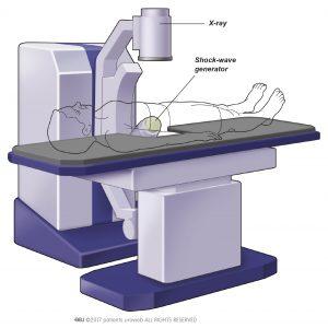 Afb. 2. Een veel voorkomend type niersteenvergruizer.