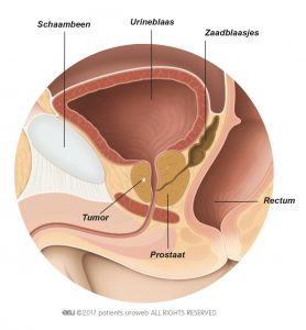 Fig. 1: Een T1-prostaattumor is te klein om gevoeld of gezien te worden op een scan.