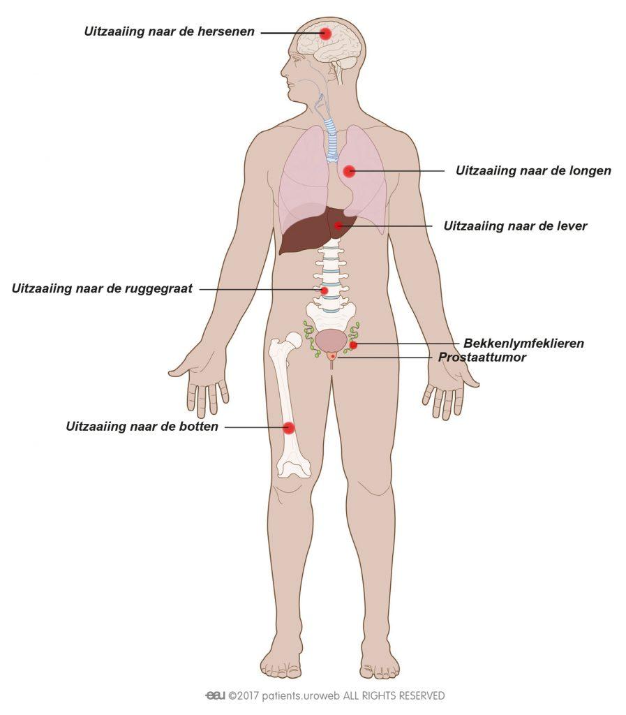Fig. 1: Uitgezaaide prostaatkanker kan zich verspreiden naar de botten, wervelkolom, longen, lever of hersenen.