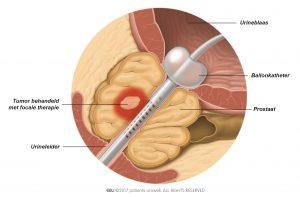 Fig. 3: Bij focale therapie worden de tumorcellen direct aangepakt en blijft de schade aan ander weefsel beperkt.