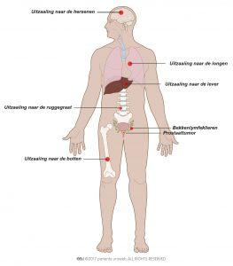 Fig. 8: Uitgezaaide prostaatkanker kan zich verspreiden naar de botten, wervelkolom, longen, lever of hersenen.