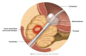 Fig. 5: Bij focale therapie worden de tumorcellen direct aangepakt en blijft de schade aan ander weefsel beperkt.
