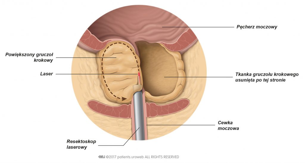 Ryc. 2. Fragmenty gruczołu krokowego wycinane laserem podczas enukleacji.