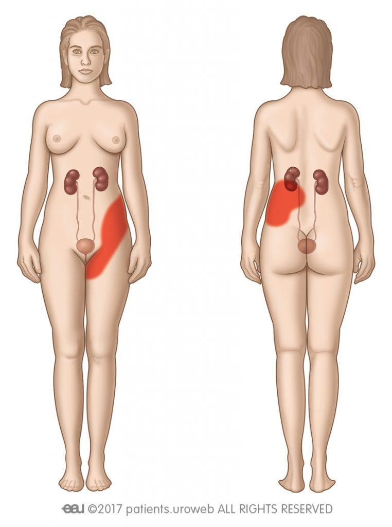 ryc. 2: Możliwe obszary występowania bólu kolkowego.