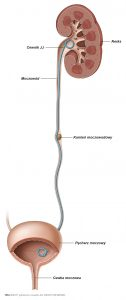 ryc. 2: Cewnik JJ założony w celu umożliwienia swobodnego odpływu moczu z nerki.