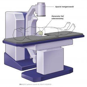 ryc. 2: Popularny typ aparatu do litotrypsji zewnątrzustrojową falą uderzeniową.