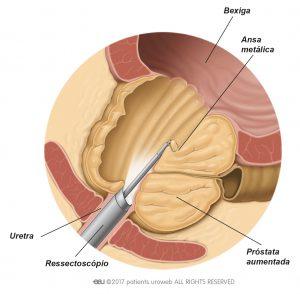 Fig. 2: O ressectoscópio remove partes do tecido da próstata durante a RTUP.