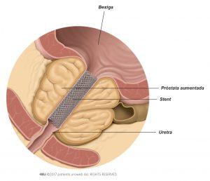 Fig. 1: Um stent prostático melhora o fluxo urinário.