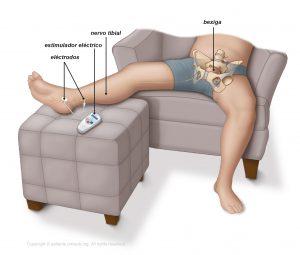 Fig. 1: Estimulação do nervo tibial.