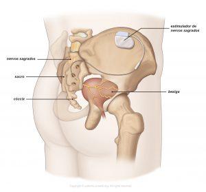 Fig. 2: Estimulação do nervo sagrado.
