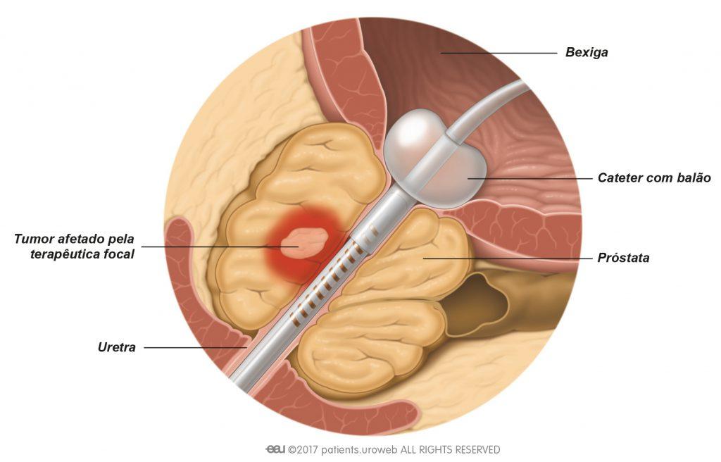 Fig. 3: Na terapêutica focal, as células do cancro da próstata são atingidas diretamente, e assim não há muitos danos noutros tecidos.