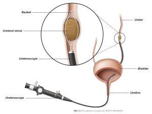 Fig. 2: Um cálculo é removido do ureter com uma pinça especial.