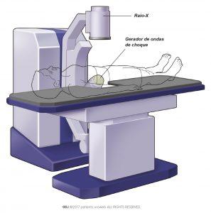 Fig.2: A localização exata do cálculo é determina por ecografia ou raio-X.