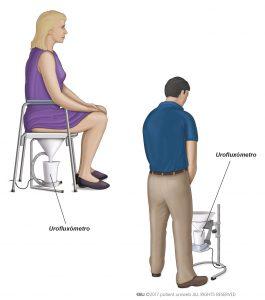 Fig. 2: Um tipo comum de dispositivo de urofluxometria para homens e mulheres.
