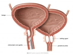Fig. 1: O bulking agent é injetado na parede da uretra.