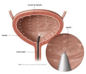 Fig. 1: A toxina botulínica é injetada na parede da bexiga.