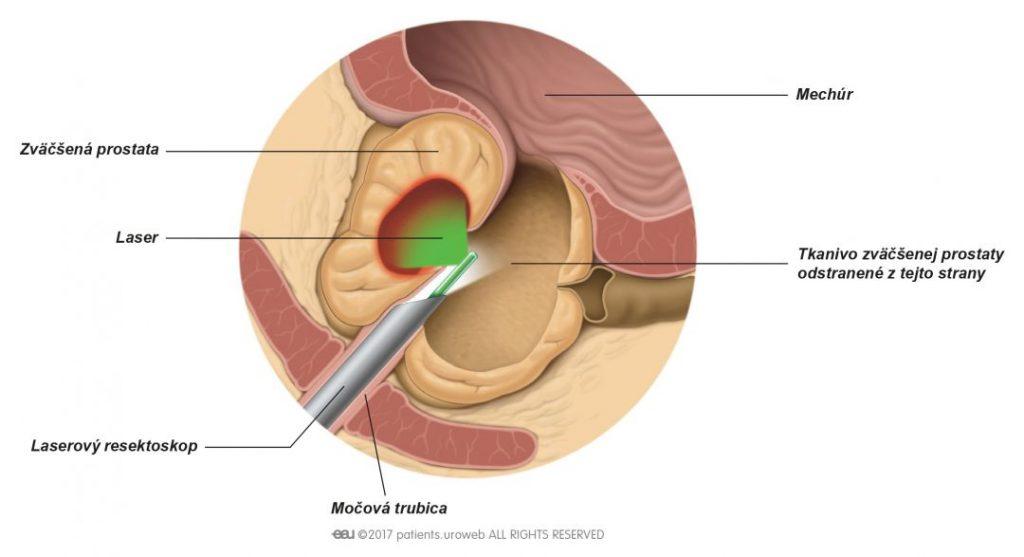Obr. 2: Teplo laseru odparujúce časť prostatického tkaniva.