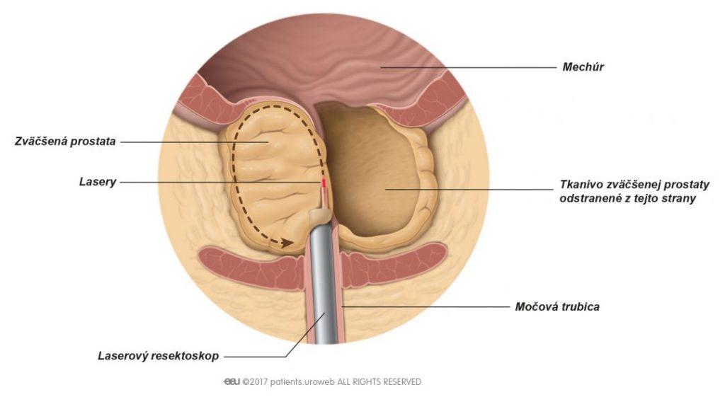Obr. 2: Laser odrezávajúci časť prostatického tkaniva v priebehu laserovej enukleácie.