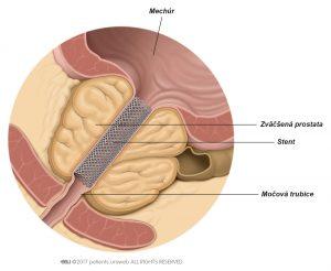 Obr. 1: Prostatický stent zlepšujúci prietok moču.