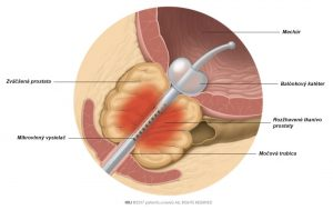 Obr. 1: Teplo generované mikrovlnnou anténou koagulujúce časť zväčšeného prostatického tkaniva.