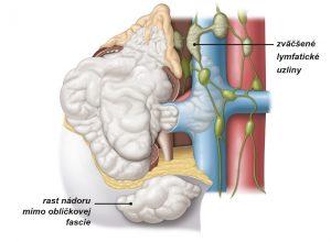 Obr. 2: Pri štvrtom štádiu nádor prerástol mimo obličku, za renálnu fasciu a do nadobličky. Niekedy pri tomto štádiu dochádza k zväčšeniu jednej alebo viacerých lymfatických uzlín.