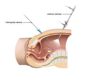 Obr. 2: Pri laparoskopickej operácii chirurg vkladá operačné nástroje pomocou malých rezov na bruchu.