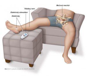 Obr. 1: Stimulácia tibiálneho nervu.