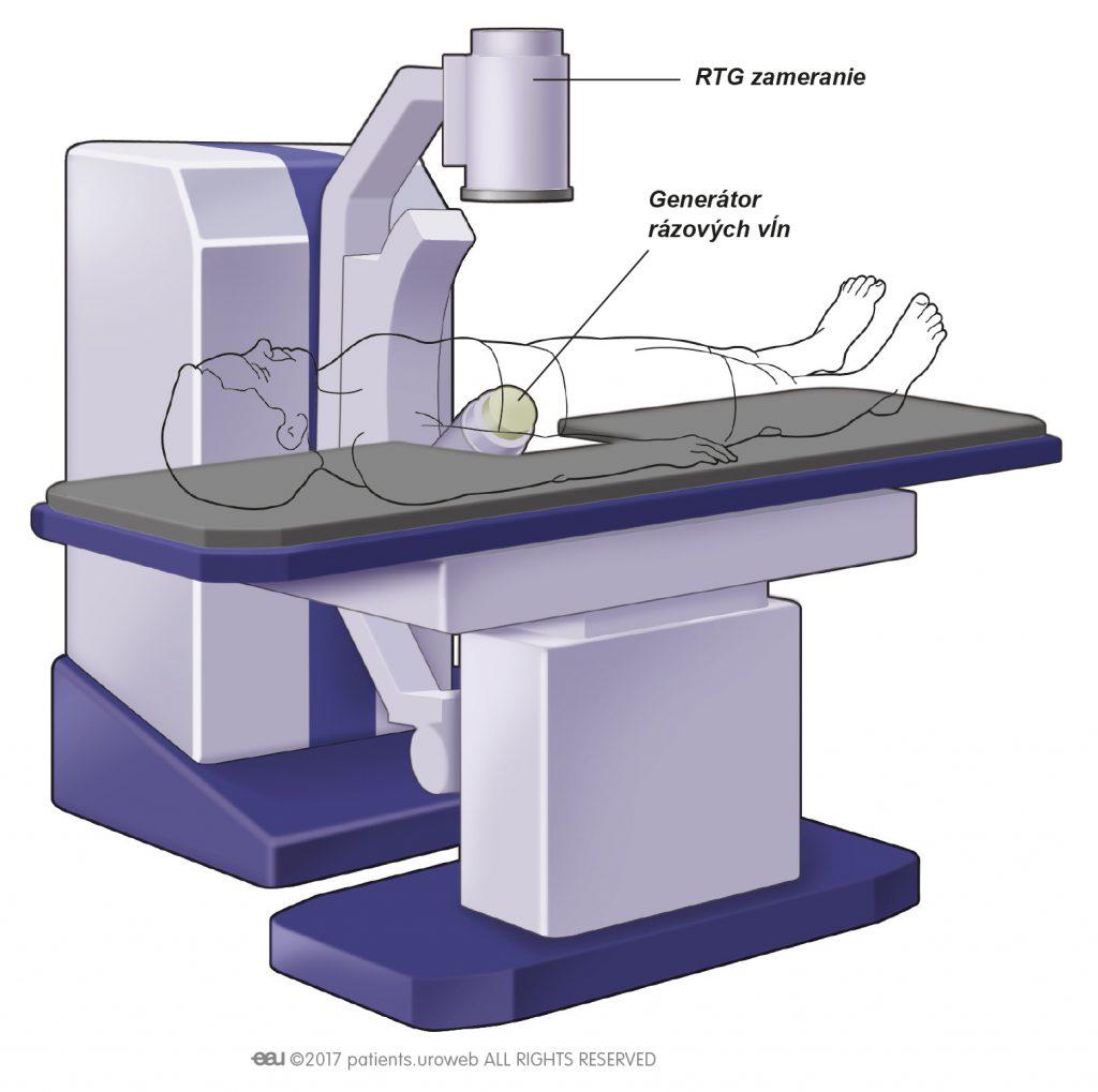 Obr. 2: Najčastejší vzhľad LERV prístroja.