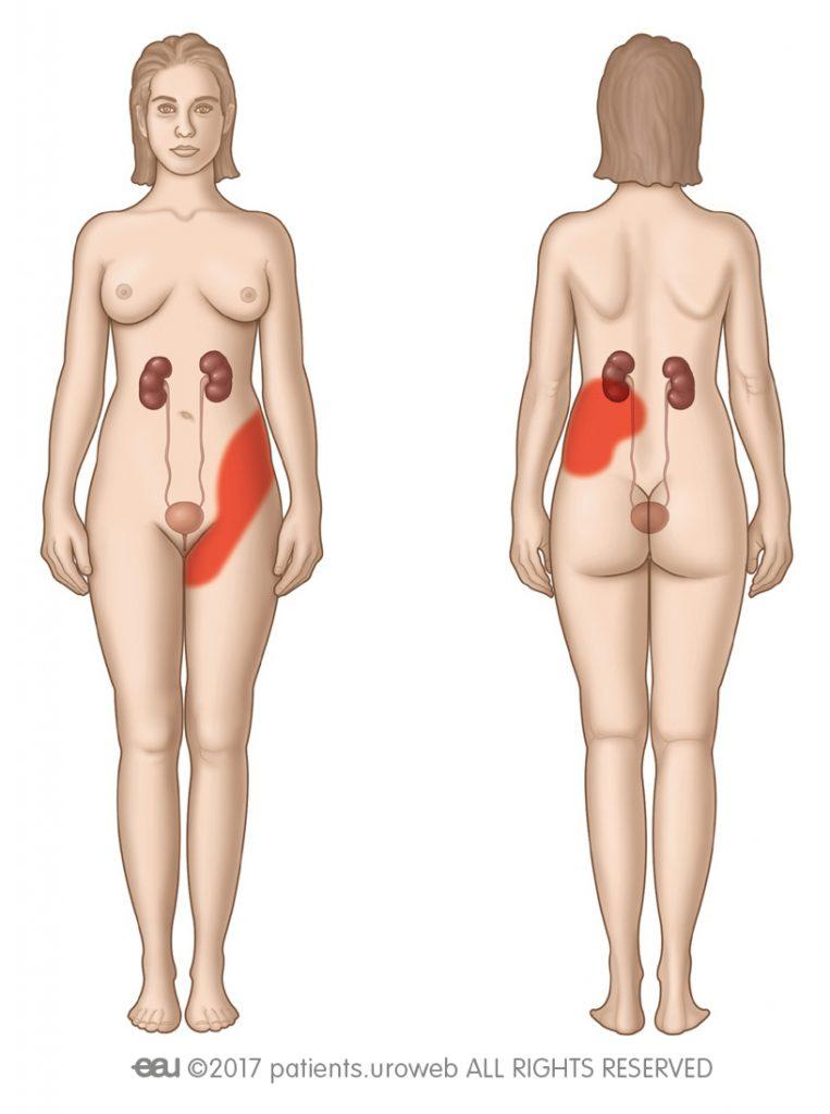 Obr. 2: Oblasti bolesti pri obličkovej kolike.