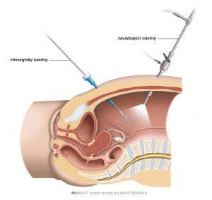 Obr. 3 Pri laparoskopickej operácii zavádza chirurg nástroje drobnými rezmi.