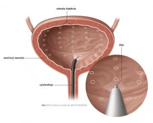 Obr. 1: Aplikácia botulotoxínu do steny močového mechúra.