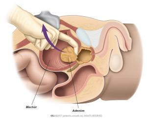 Obr. 1: Chirurg odstraňujúci adenóm v priebehu operácie.