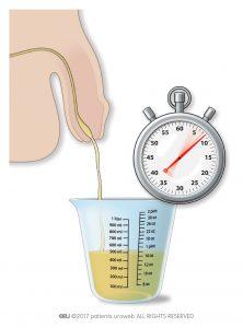 Slika 2: Merjenje pretoka urina doma.