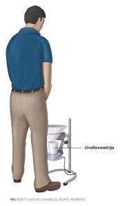 Slika 3: Običajen zbiralnik urina za uroflovmetrijo.