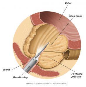 Slika 2: Resektoskop odstranjuje dele prostatičnega tkiva med TURP.