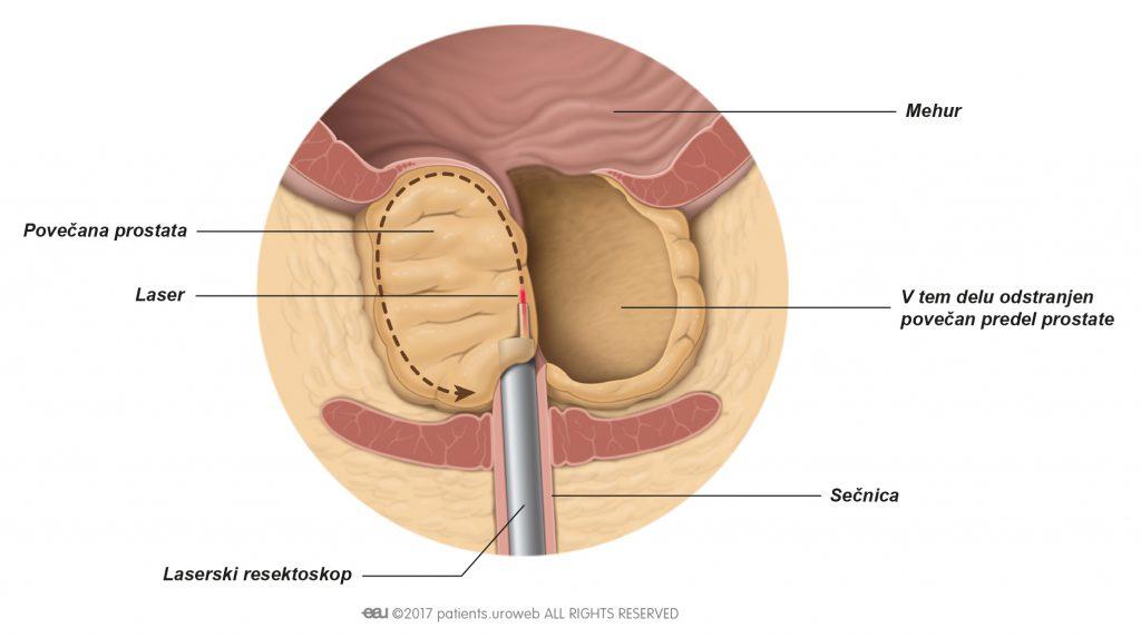 Slika 2: Laser izreže dele prostatičnega tkiva med laserskim izluščenjem.