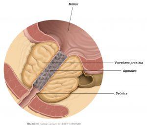 Slika 1: Prostatična opornica izboljša pretok urina.