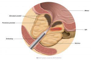 Slika 1: Igla z uporabo radiofrekvenčne energije segreje prostatično tkivo.