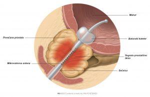 Slika 1: Toplota, ki jo proizvede mikrovalovna antena, koagulira dele povečane prostate.