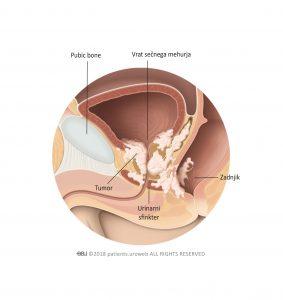 Slika 2: T4 tumor prostate, ki je zajel vrat sečnega mehurja, mišico zapiralko in zadnjik.