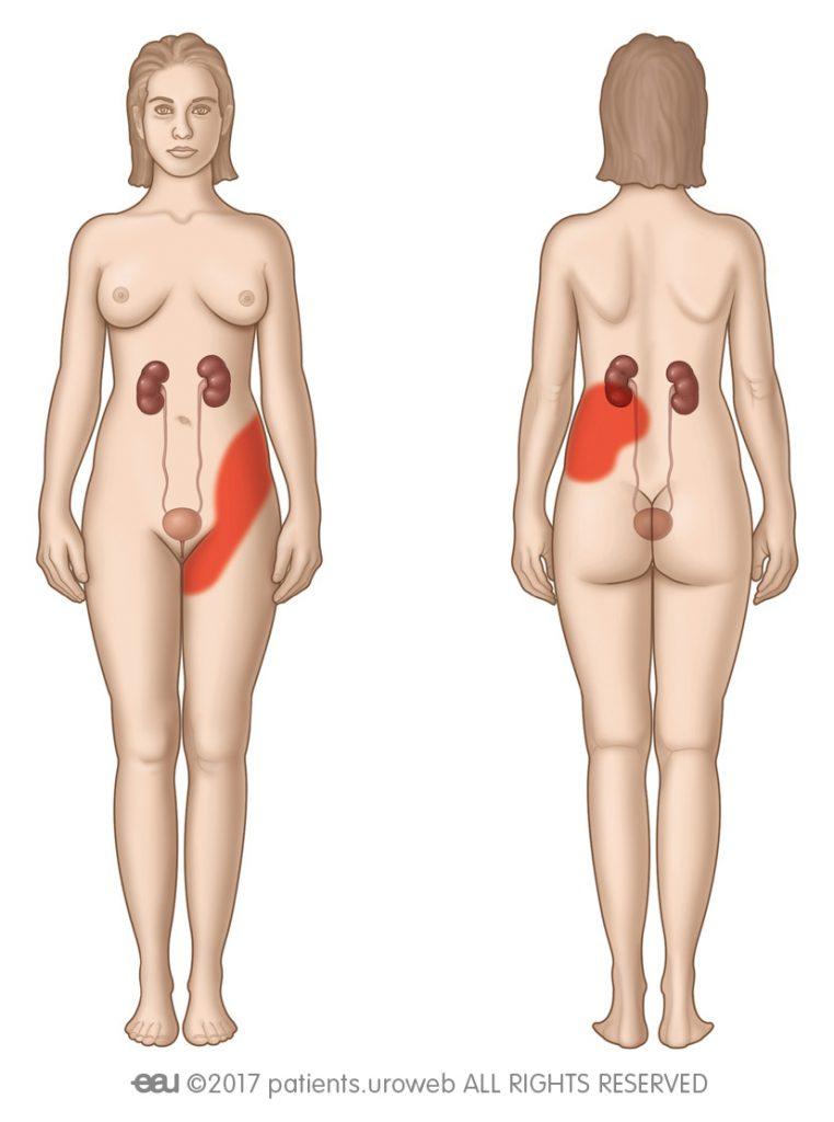 Slika 2: Področja bolečnosti pri ledvičnih kolikah.