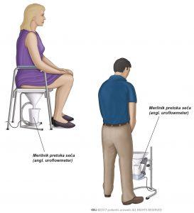Sl. 2: Običajni merilnik pretoka seča za moške in ženske.