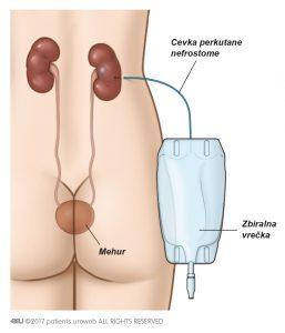 Slika 2a: Po cevki nefrostome se seč iz ledvice nabira v zbiralni vrečki.